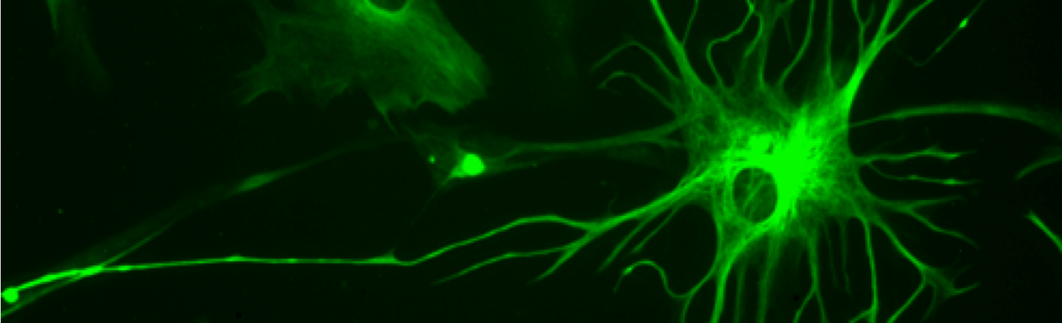 ALS, SCI Research Shows Astrocytes' Importance in Treatment