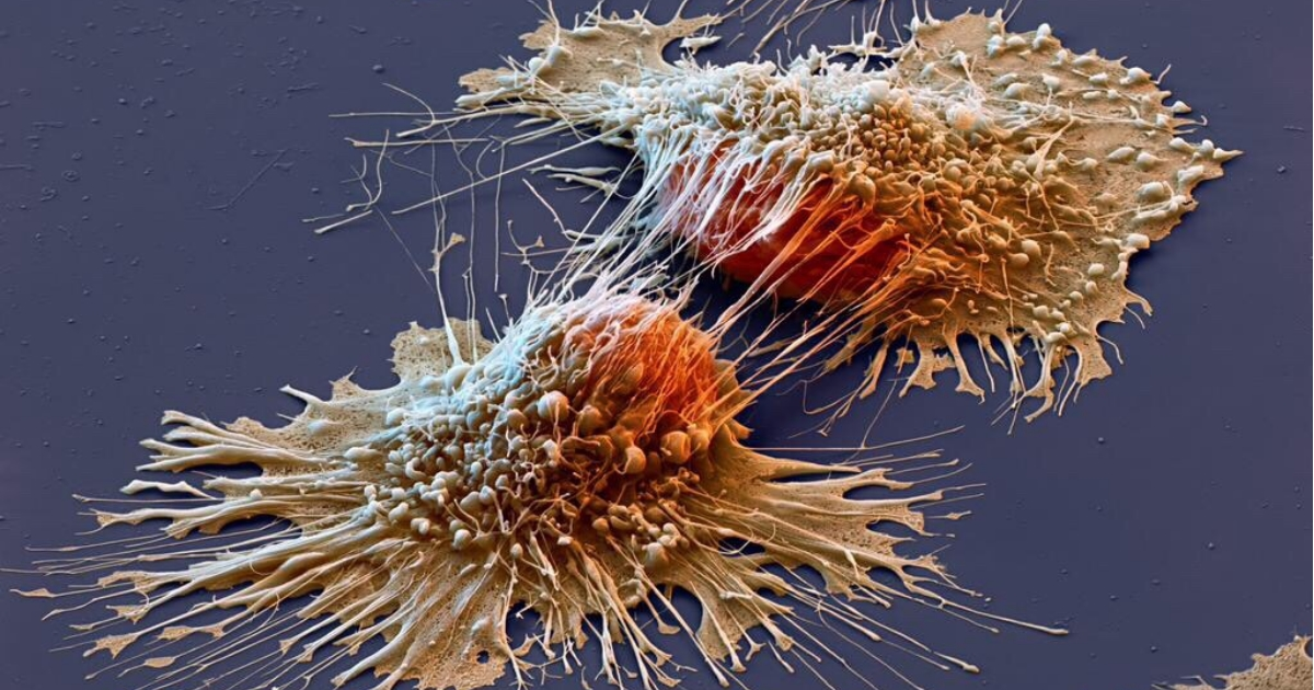 Cancer treating immunotherapy